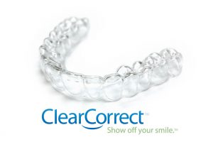 clearcorrect-3D-printed-braces