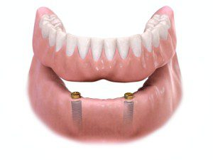 implant-supported-overdenture-300x225