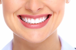 Rejuvenate Your Smile-model