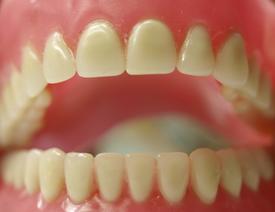 dentures-model
