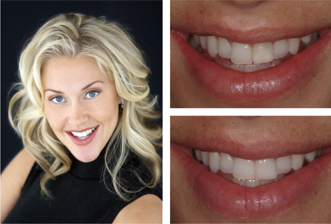 Blonde Woman Before and After Smile